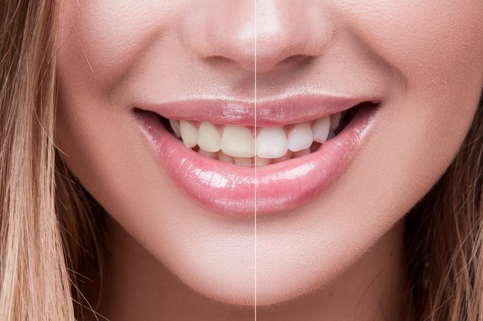diş beyazlatma evde nasıl yapılır