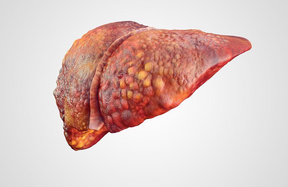 karaciğer yağlanması tedavisi