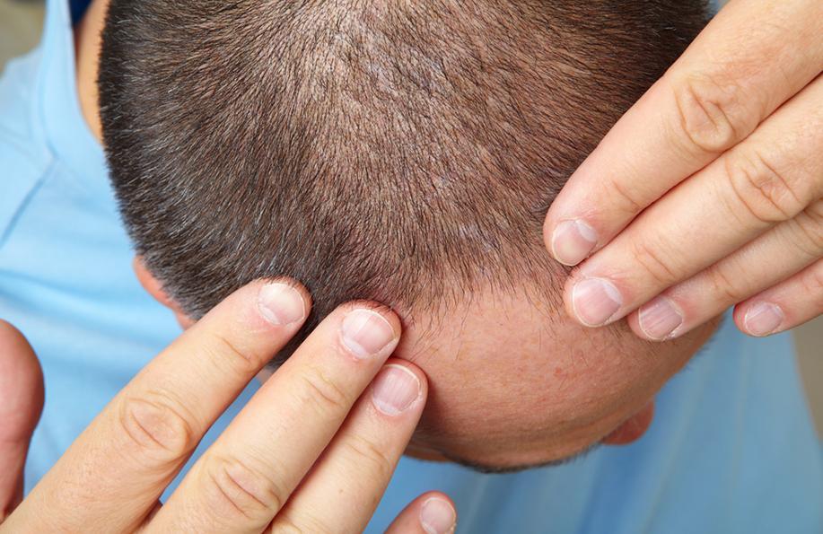 saç dökülmesi erkek