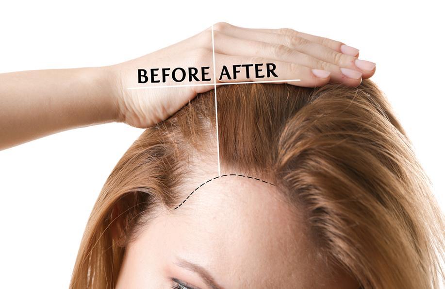 saç dökülmesi neden olur