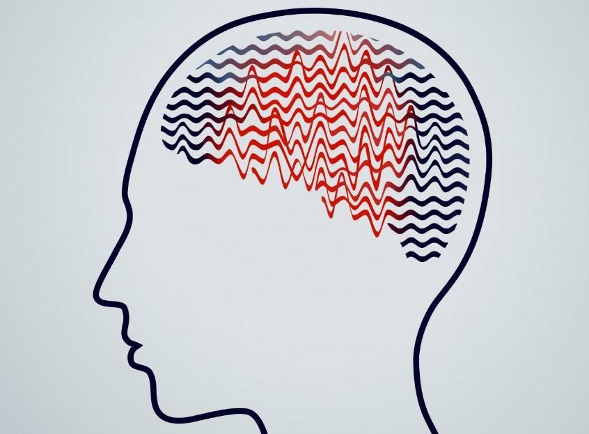 epilepsi çeşitleri