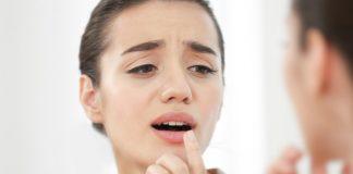 ağız içi yarası