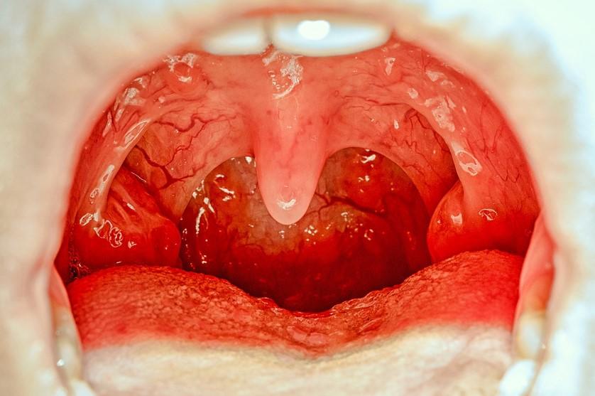 ağız içi yarası nasıl geçer
