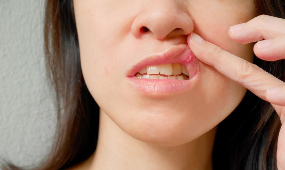 ağız yarasına ne iyi gelir