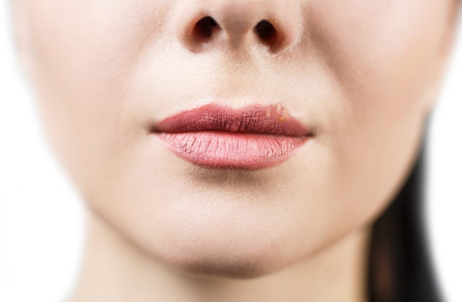 dudaktaki uçuk nasıl geçer