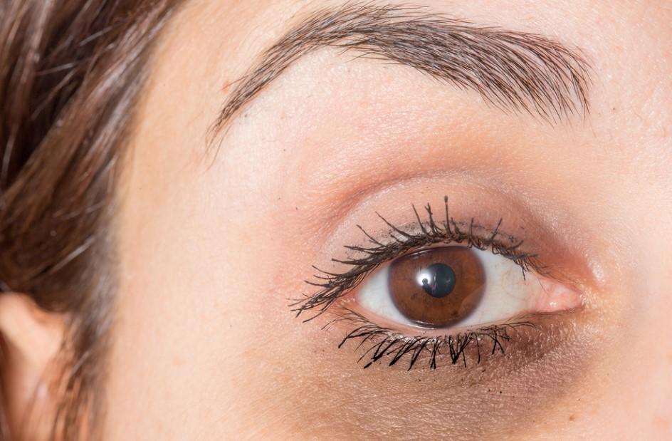 göz altı morlukları için krem