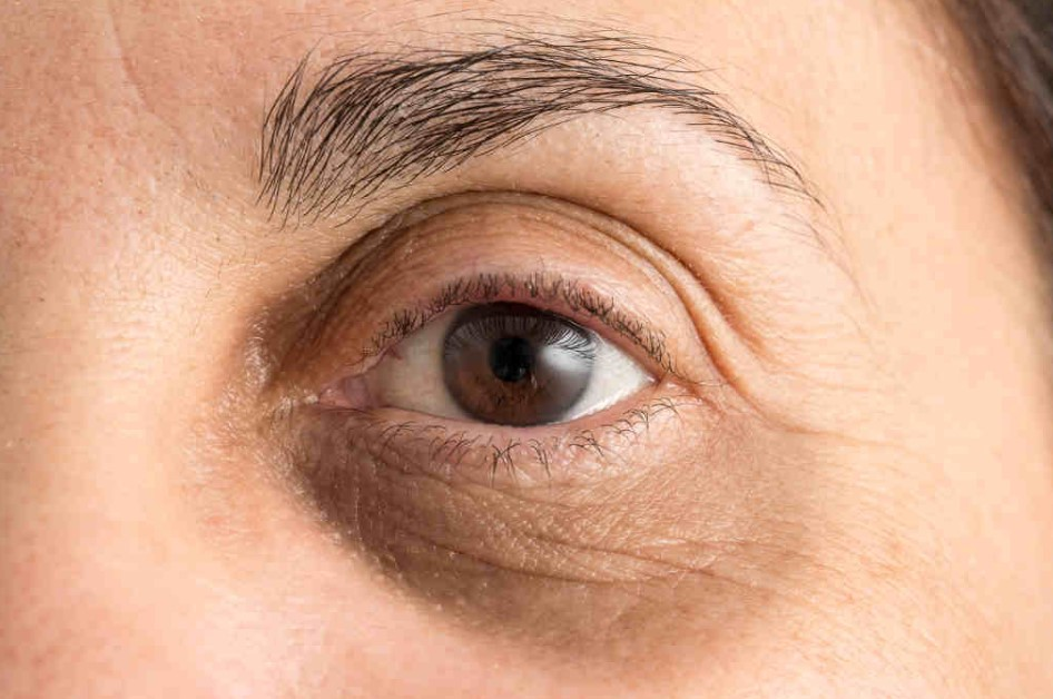 göz altı morlukları için