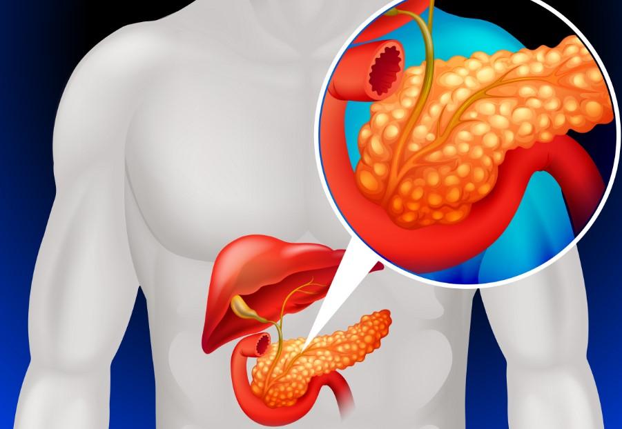 pankreas hastalığı