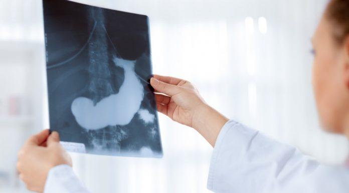 pankreas hastalıkları