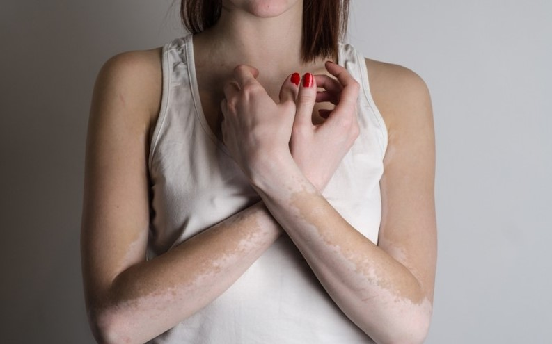 vitiligo tedavisi 2018