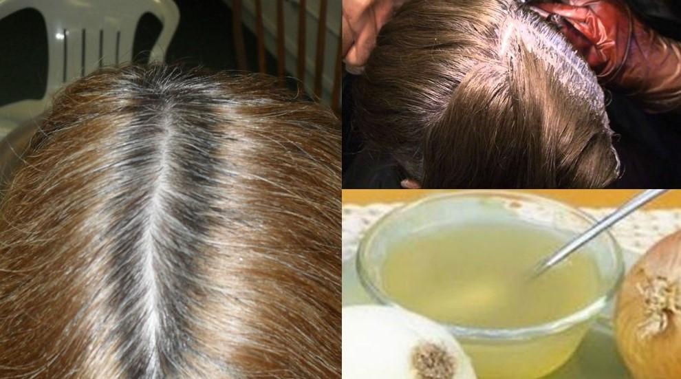 soğan kürü saç