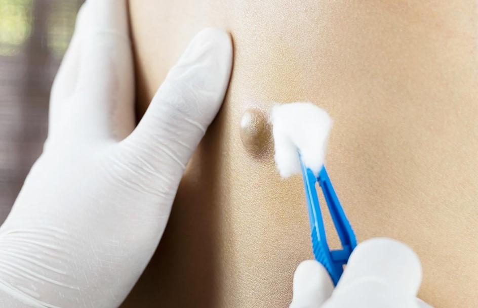 yağ bezesi ameliyatı nasıl yapılır