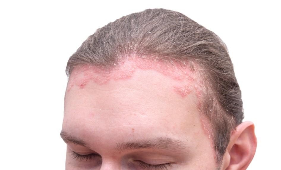 saç egzaması nasıl geçer