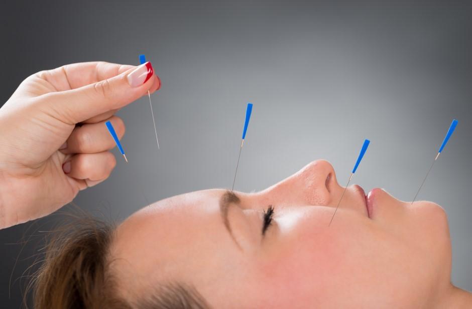 akupunktur iğnesi