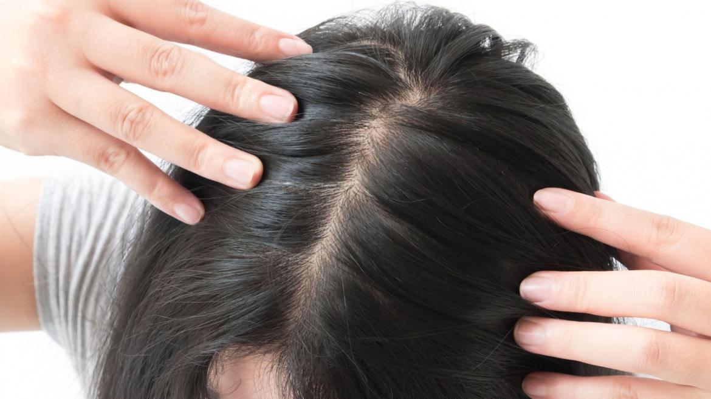 Mezoterapi Saç Estetiği